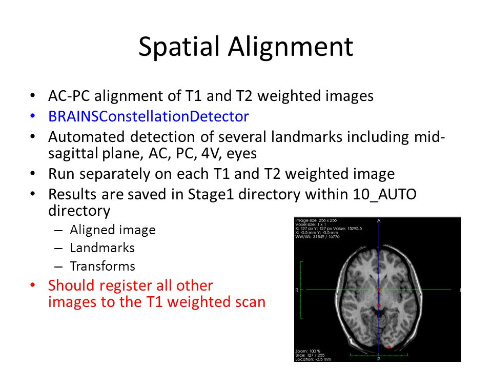 Spatial Alignment AC-PC alignment of T1 and T2 weighted images BRAINSConstellationDetector Automated detection of several landmarks including mid- sag