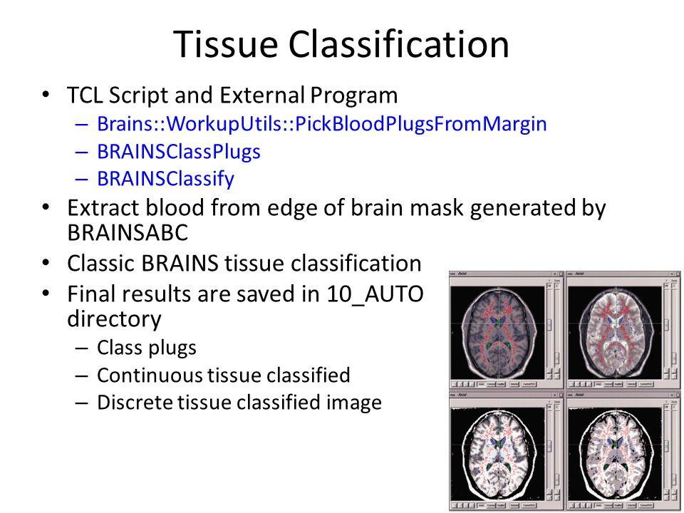 Tissue Classification TCL Script and External Program – Brains::WorkupUtils::PickBloodPlugsFromMargin – BRAINSClassPlugs – BRAINSClassify Extract bloo