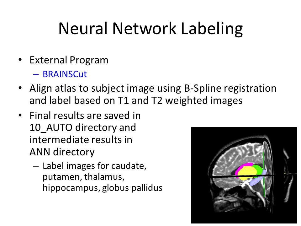 Neural Network Labeling External Program – BRAINSCut Align atlas to subject image using B-Spline registration and label based on T1 and T2 weighted im