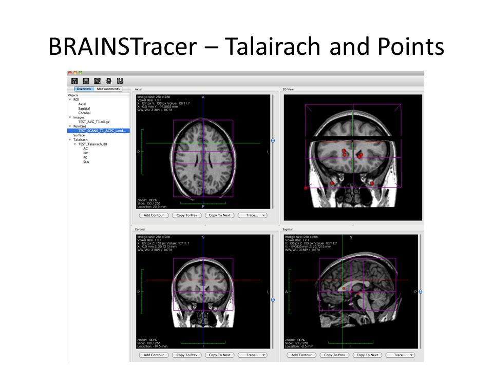 BRAINSTracer Other Features