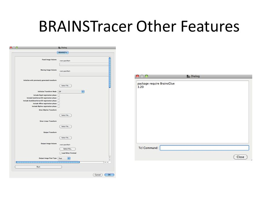 BRAINS3 AutoWorkup File format conversion Spatial Alignment Bias Field Correction and Normalization Define Talairach Coordinate System Tissue Classification Neural Network Volume Measurements Surface Generation Surface Measurements Diffusion Tensor Analysis