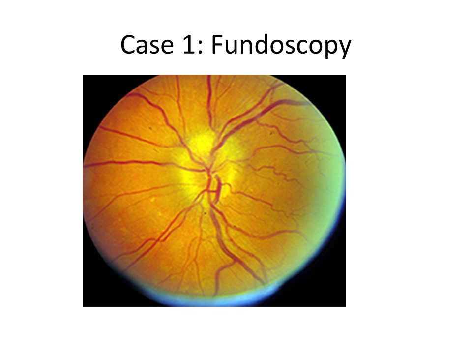 Case 1: Fundoscopy