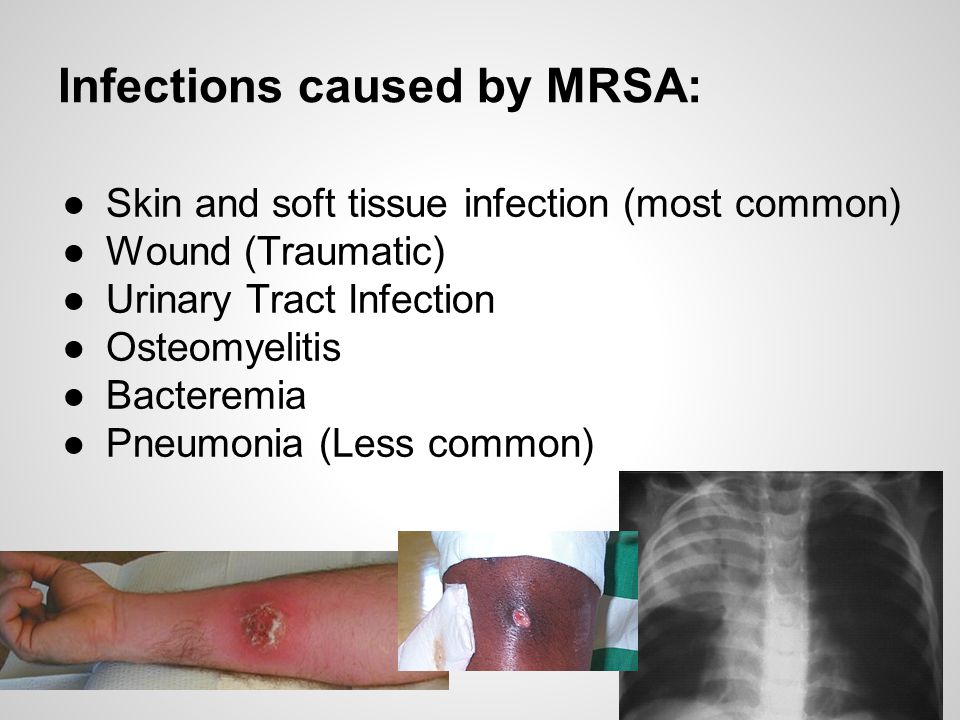 Infections caused by MRSA: ●Skin and soft tissue infection (most common) ●Wound (Traumatic) ●Urinary Tract Infection ●Osteomyelitis ●Bacteremia ●Pneum
