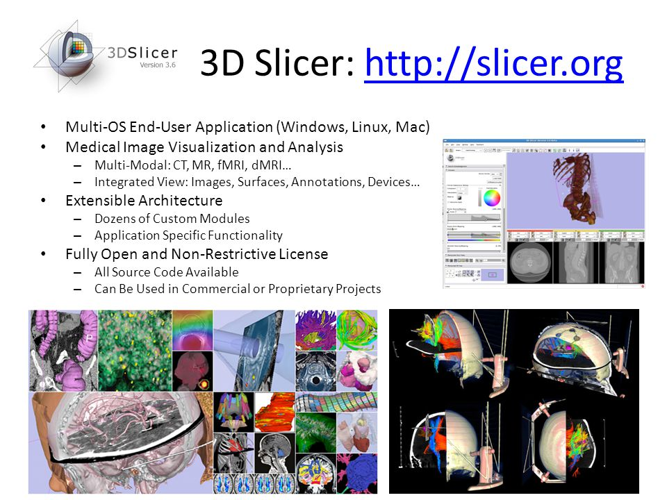 3D Slicer: http://slicer.orghttp://slicer.org Multi-OS End-User Application (Windows, Linux, Mac) Medical Image Visualization and Analysis – Multi-Mod