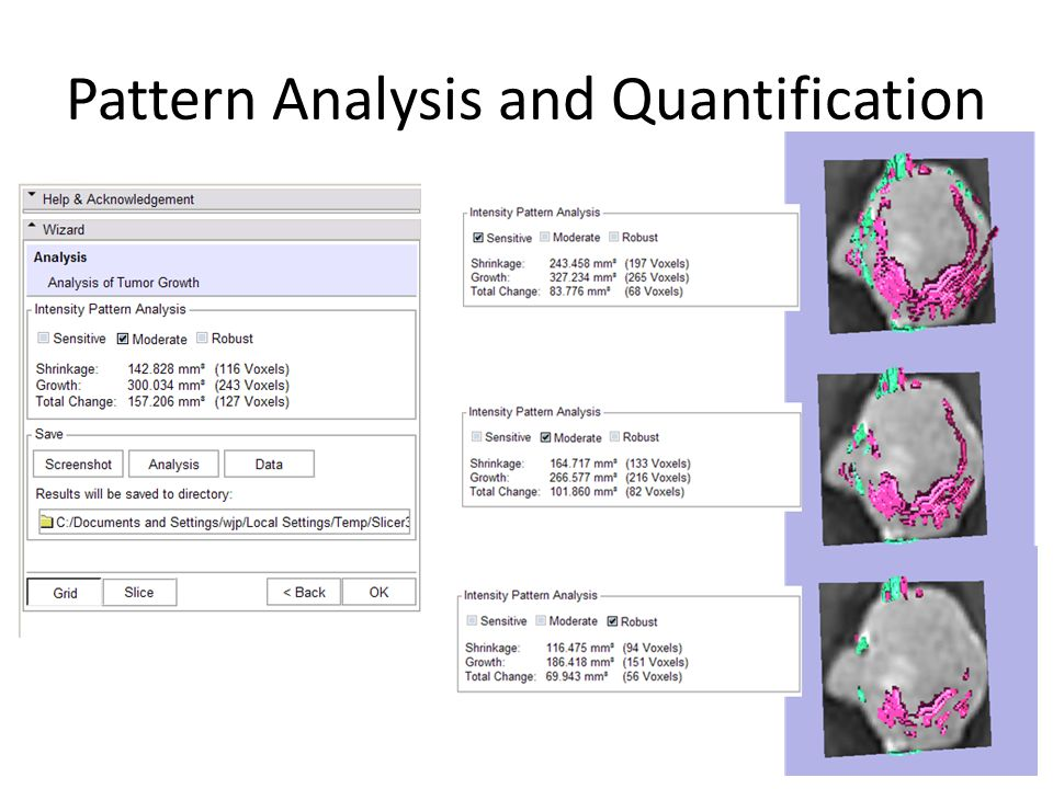 Pattern Analysis and Quantification