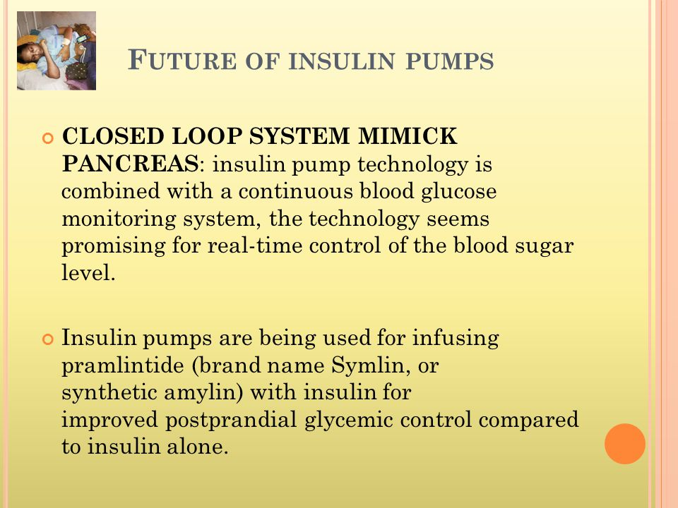 F UTURE OF INSULIN PUMPS CLOSED LOOP SYSTEM MIMICK PANCREAS : insulin pump technology is combined with a continuous blood glucose monitoring system, t