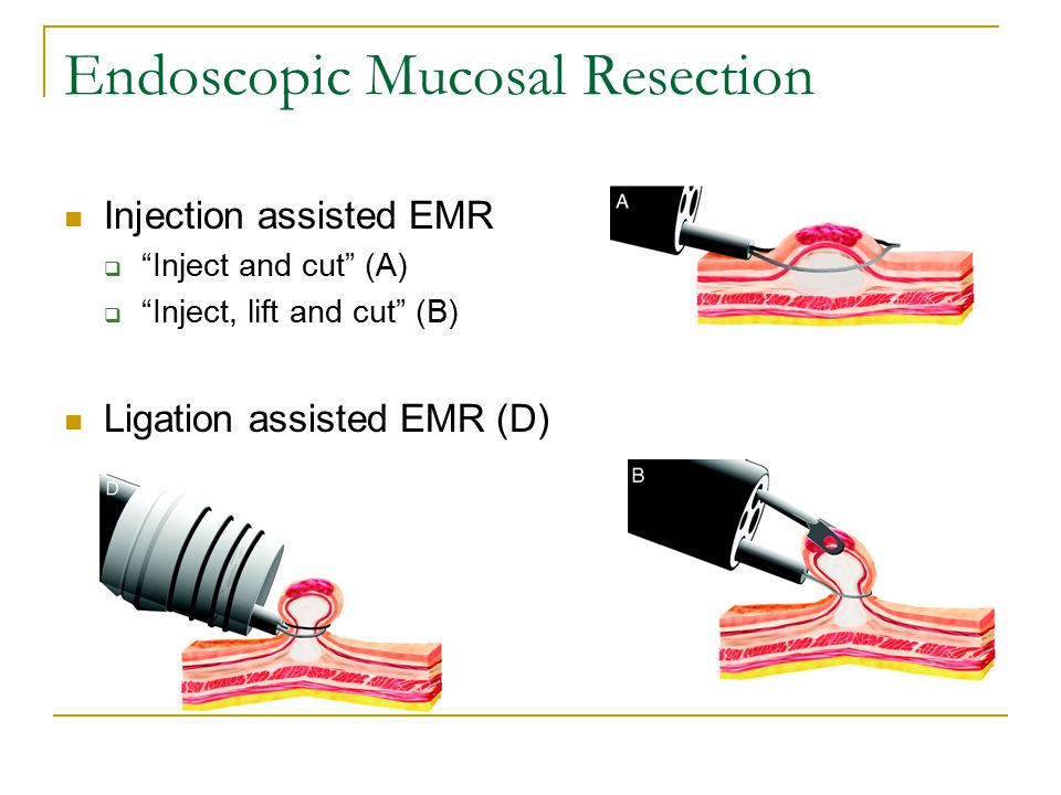 Endoscopic Mucosal Resection Injection assisted EMR  Inject and cut (A)  Inject, lift and cut (B) Ligation assisted EMR (D)