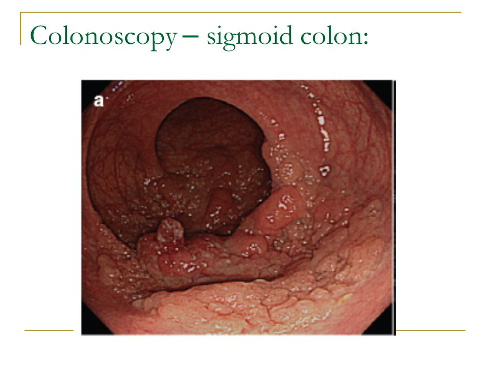 Colonoscopy – sigmoid colon: