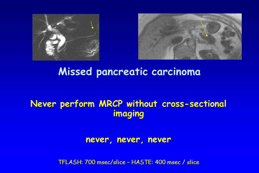Missed pancreatic carcinoma Never perform MRCP without cross-sectional imaging never, never, never TFLASH: 700 msec/slice – HASTE: 400 msec / slice