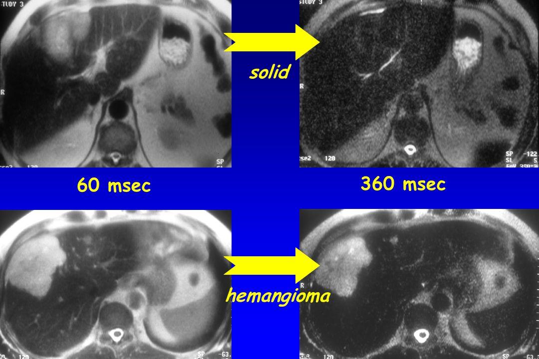 60 msec 360 msec solid hemangioma