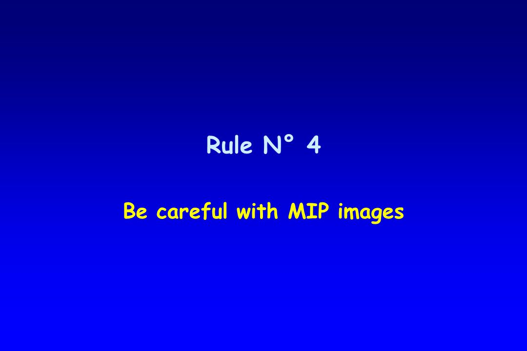 Rule N° 4 Be careful with MIP images