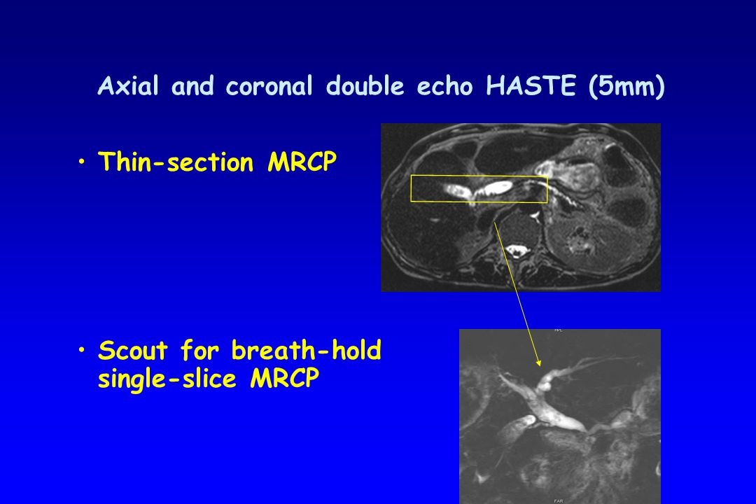 Procedure Single-slice MRCP - RARE sequence – slice thickness 3 cm, TE 1100 – 3 sec / image – breath hold = overview images