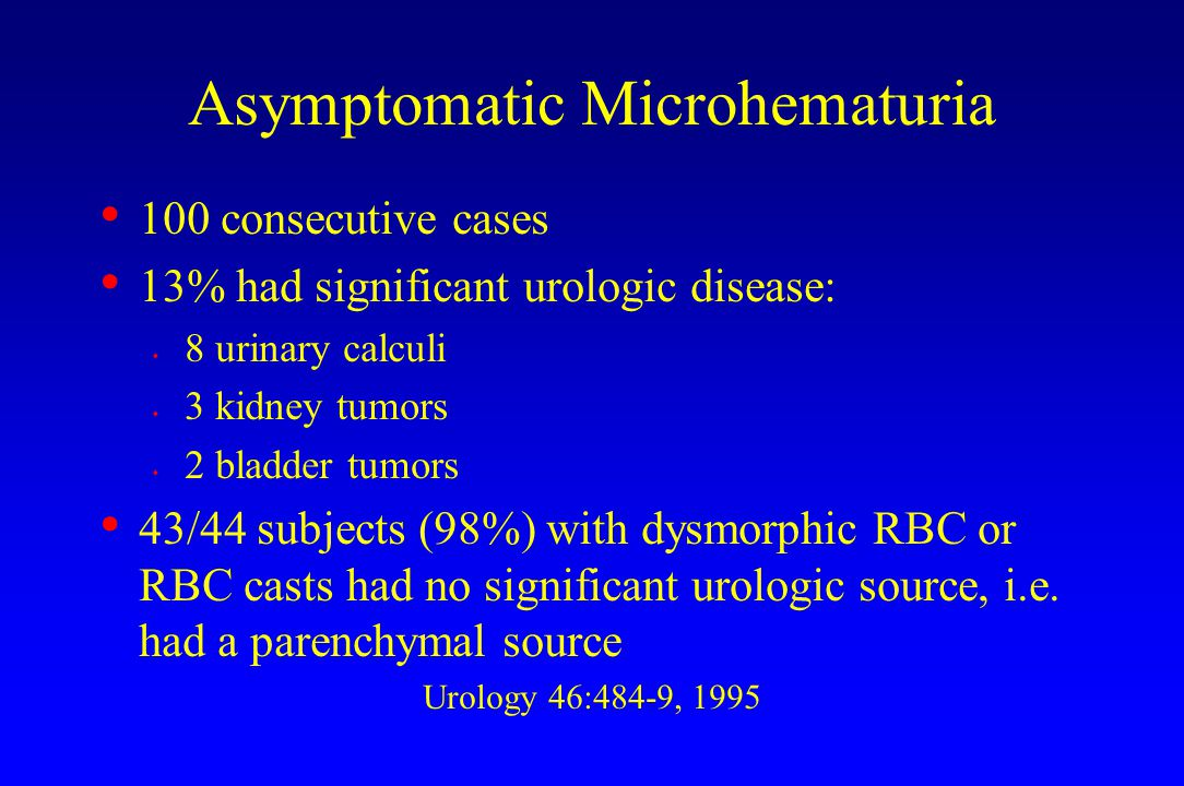 Asymptomatic Microhematuria 100 consecutive cases 13% had significant urologic disease: s 8 urinary calculi s 3 kidney tumors s 2 bladder tumors 43/44 subjects (98%) with dysmorphic RBC or RBC casts had no significant urologic source, i.e.