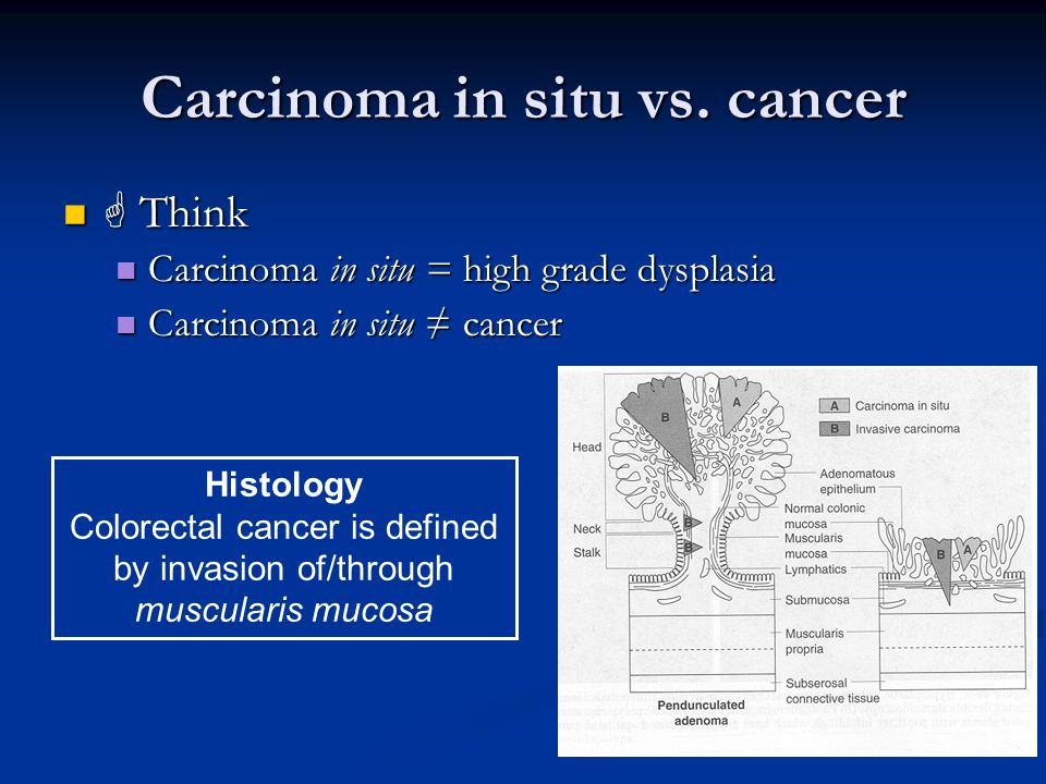 Carcinoma in situ vs. cancer  Think  Think Carcinoma in situ = high grade dysplasia Carcinoma in situ = high grade dysplasia Carcinoma in situ ≠ can