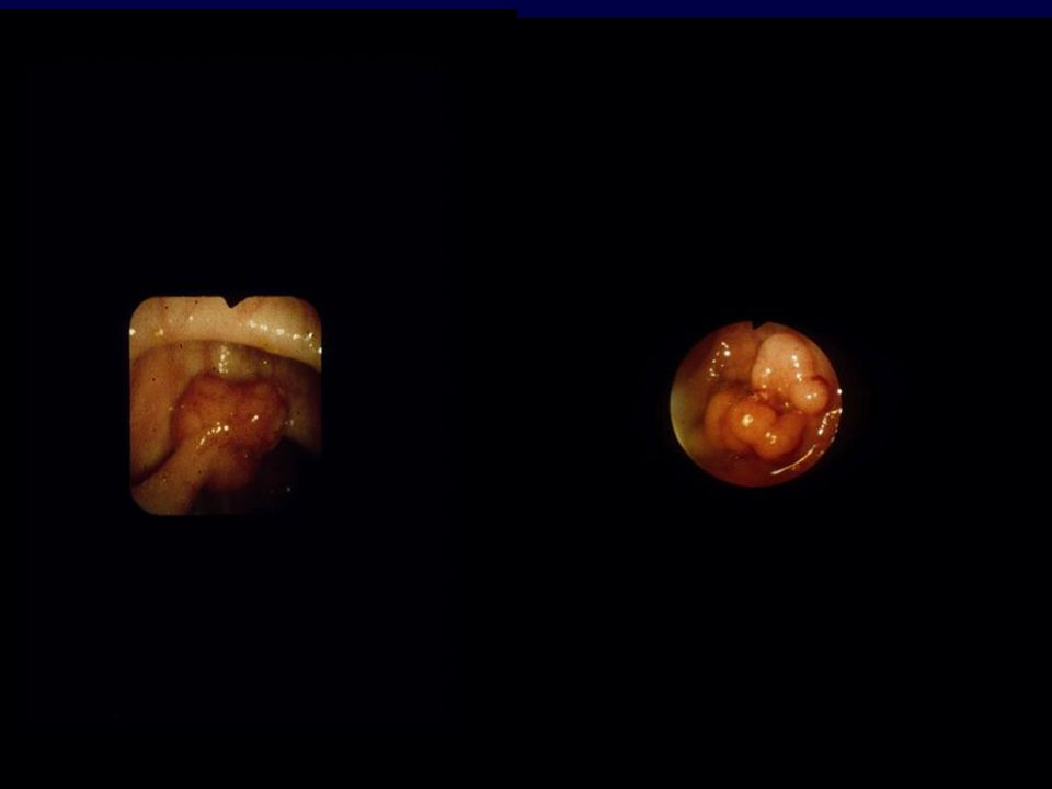 Adequate Local Excision Colon Clear margins Clear depth > 2 mm Low rectum Clear margins Full thickness