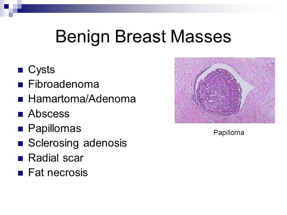 Benign Breast Masses Cysts Fibroadenoma Hamartoma/Adenoma Abscess Papillomas Sclerosing adenosis Radial scar Fat necrosis Papilloma