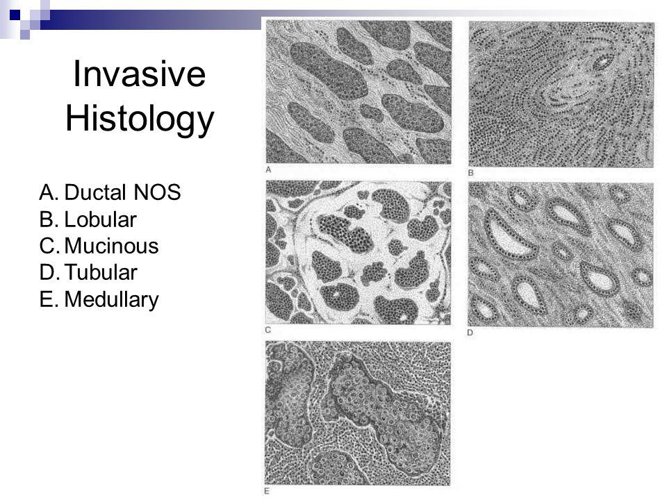 Invasive Histology A.Ductal NOS B.Lobular C.Mucinous D.Tubular E.Medullary