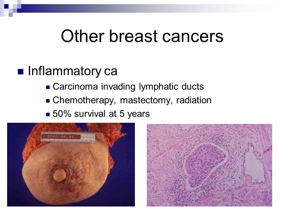 Other breast cancers Inflammatory ca Carcinoma invading lymphatic ducts Chemotherapy, mastectomy, radiation 50% survival at 5 years