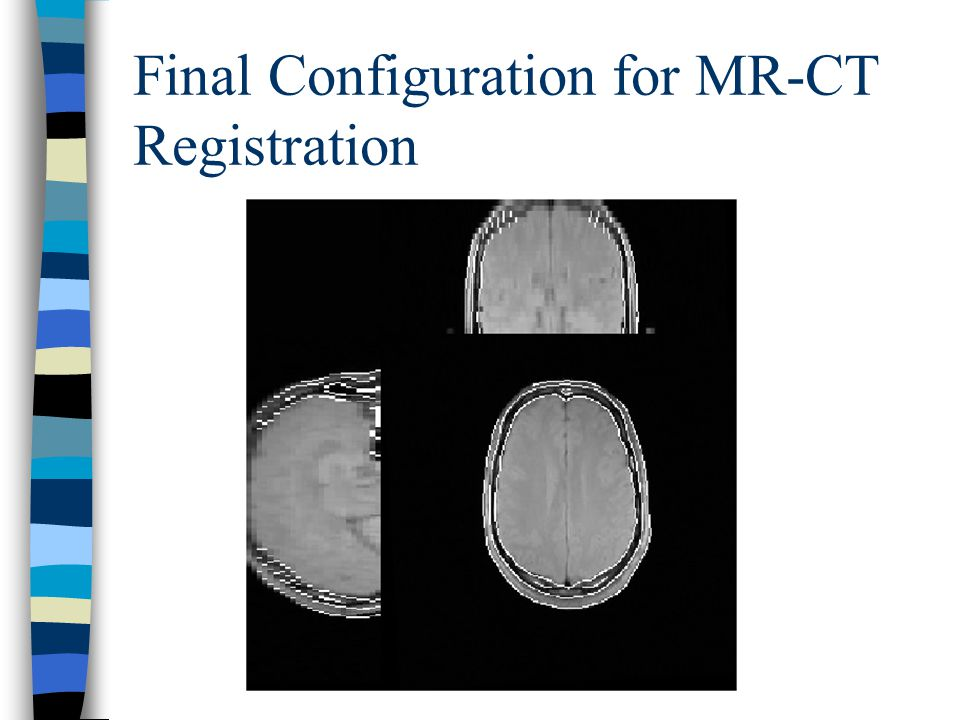 Final Configuration for MR-CT Registration