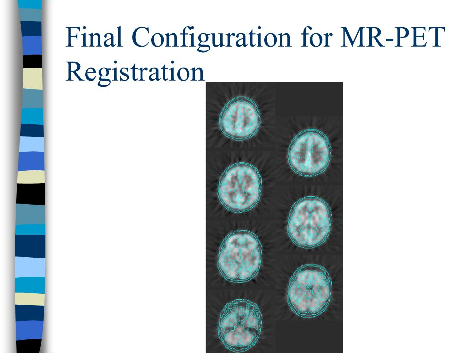 Final Configuration for MR-PET Registration