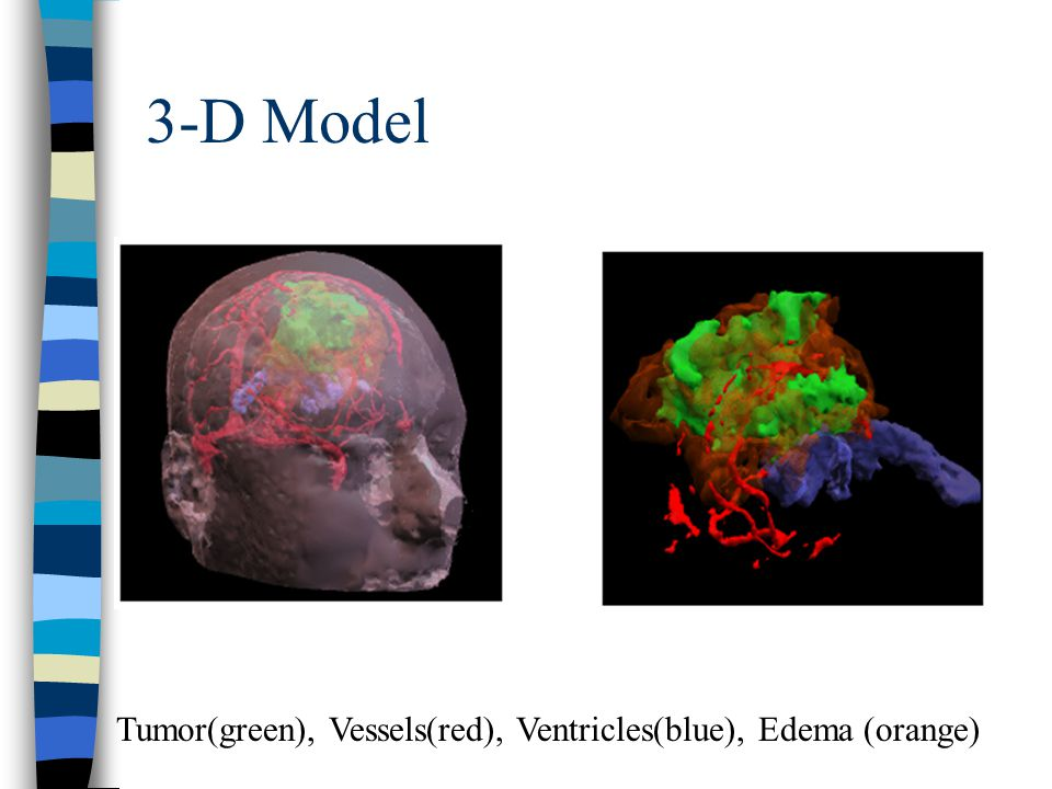 3-D Model Tumor(green), Vessels(red), Ventricles(blue), Edema (orange)