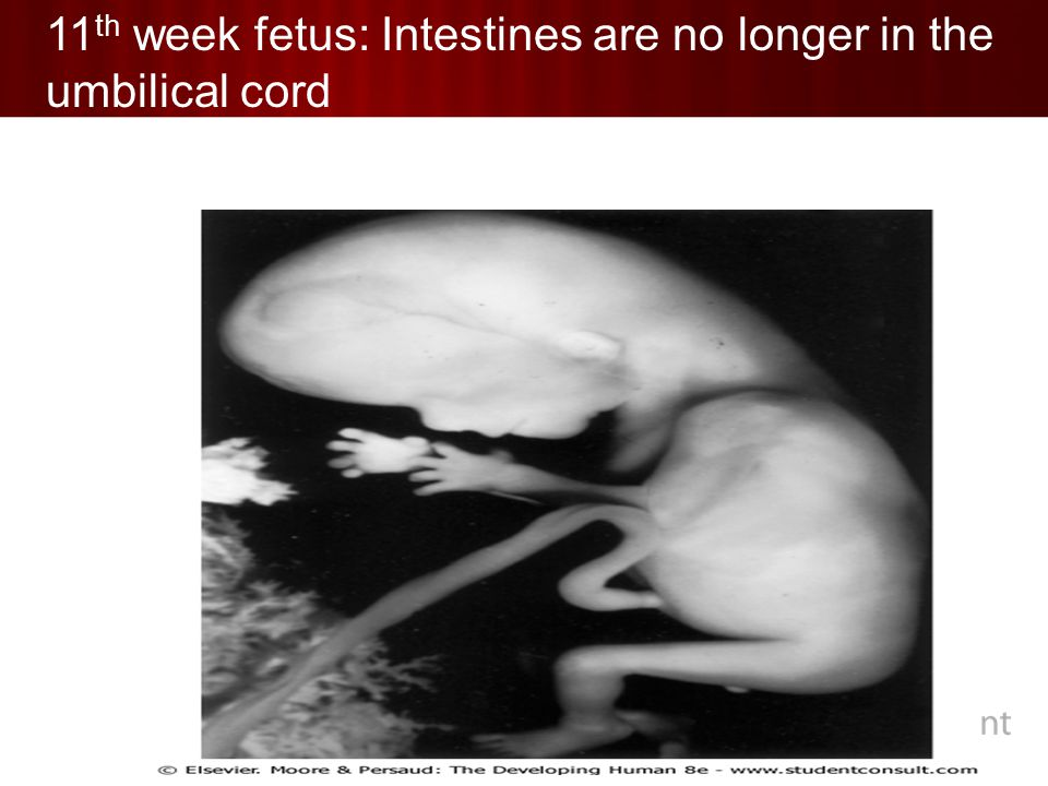 11 th week fetus: Intestines are no longer in the umbilical cord