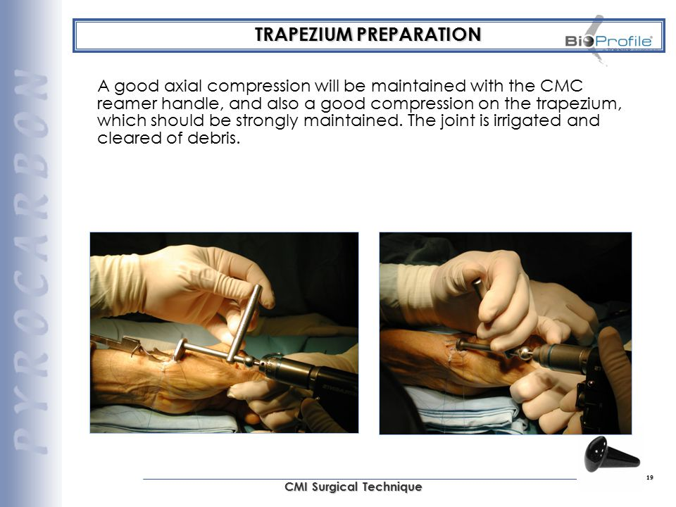 19 CMI Surgical Technique TRAPEZIUM PREPARATION A good axial compression will be maintained with the CMC reamer handle, and also a good compression on
