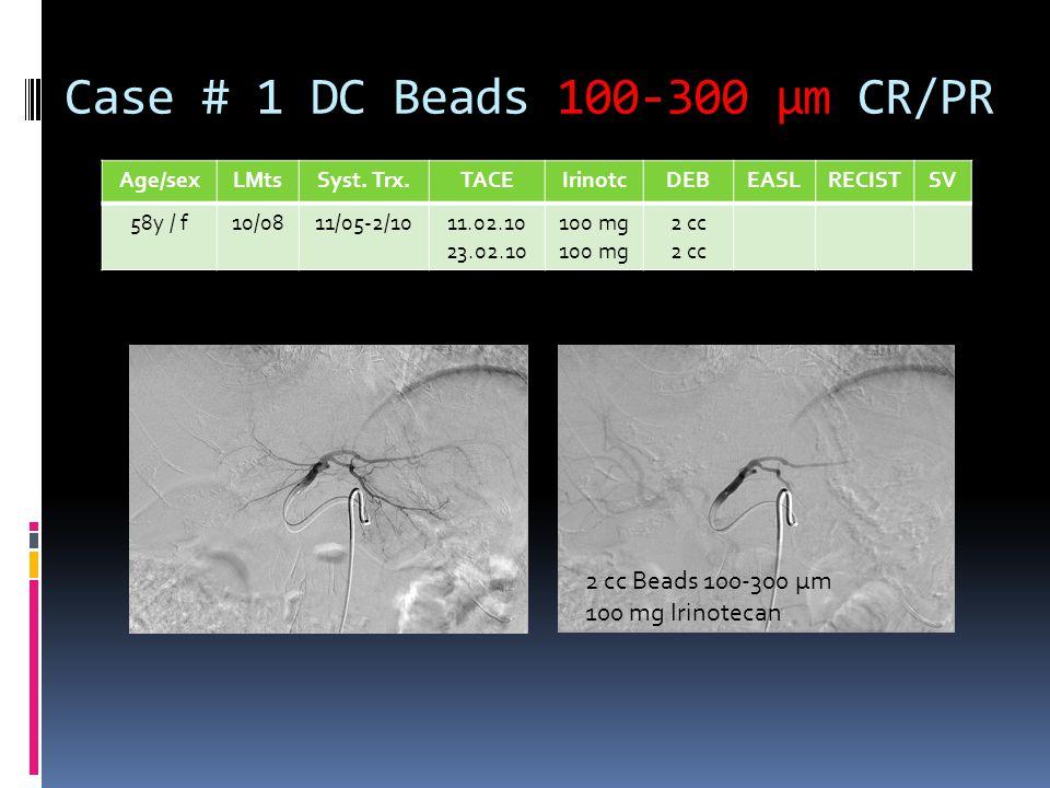 Case # 1 DC Beads 100-300 µm CR/PR Age/sexLMtsSyst. Trx.TACEIrinotcDEBEASLRECISTSV 58y / f10/0811/05-2/1011.02.10 23.02.10 100 mg 2 cc 2 cc Beads 100-
