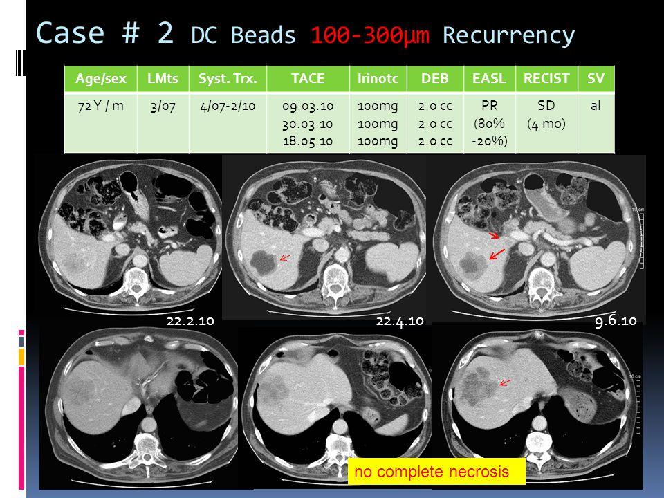 Case # 2 DC Beads 100-300µm Recurrency Age/sexLMtsSyst. Trx.TACEIrinotcDEBEASLRECISTSV 72 Y / m3/074/07-2/1009.03.10 30.03.10 18.05.10 100mg 2.0 cc PR