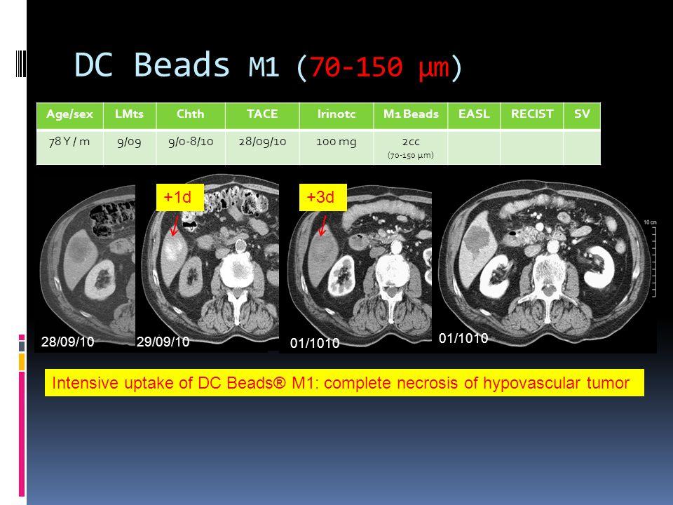 DC Beads M1 (70-150 µm) Age/sexLMtsChthTACEIrinotcM1 BeadsEASLRECISTSV 78 Y / m9/099/0-8/1028/09/10100 mg2cc (70-150 µm) 10/10 28/09/1029/09/10 01/101