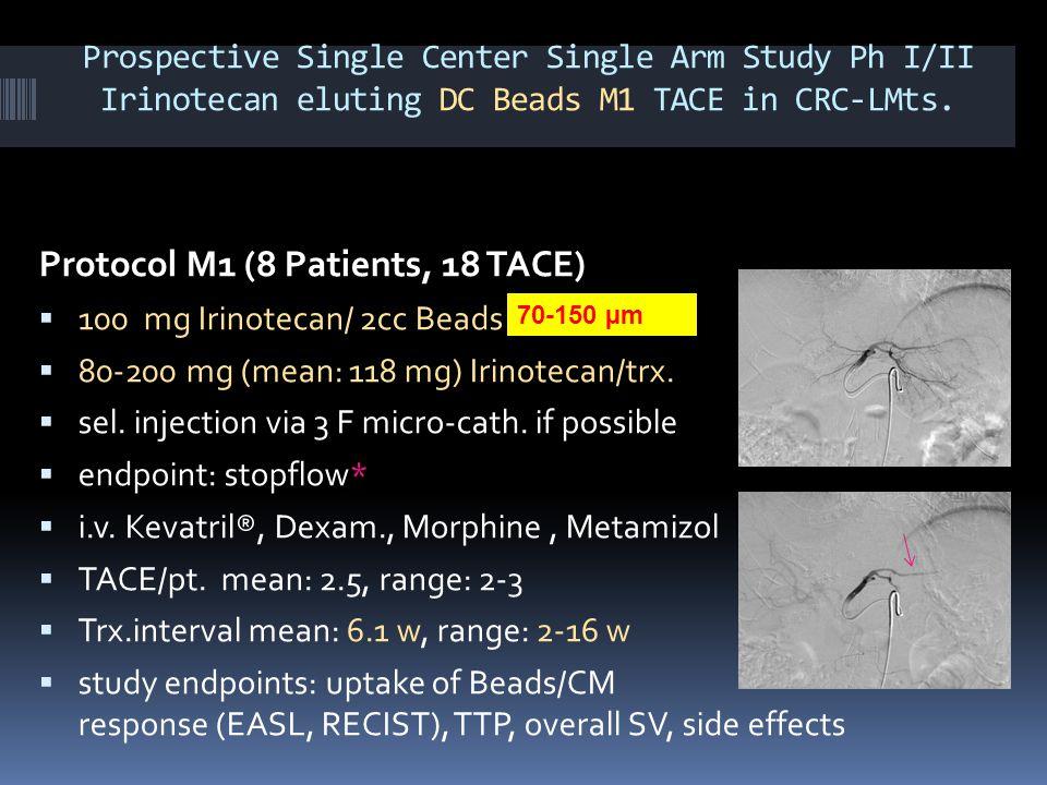 Prospective Single Center Single Arm Study Ph I/II Irinotecan eluting DC Beads M1 TACE in CRC-LMts. Protocol M1 (8 Patients, 18 TACE)  100 mg Irinote