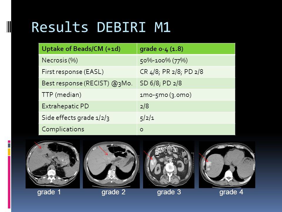 Results DEBIRI M1 Uptake of Beads/CM (+1d)grade 0-4 (1.8) Necrosis (%)50%-100% (77%) First response (EASL)CR 4/8; PR 2/8; PD 2/8 Best response (RECIST