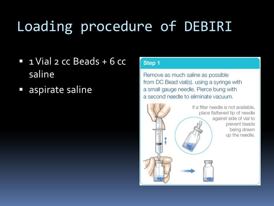 Loading procedure of DEBIRI  1 Vial 2 cc Beads + 6 cc saline  aspirate saline  add 100 mg Irinotecan (5 cc Campto®, Pfizer)