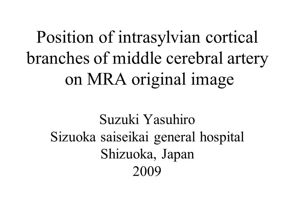 Position of intrasylvian cortical branches of middle cerebral artery on MRA original image Suzuki Yasuhiro Sizuoka saiseikai general hospital Shizuoka