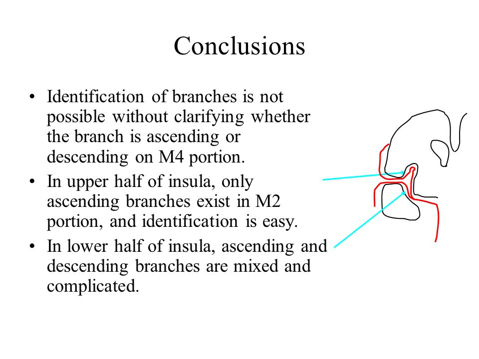 Conclusions Identification of branches is not possible without clarifying whether the branch is ascending or descending on M4 portion. In upper half o