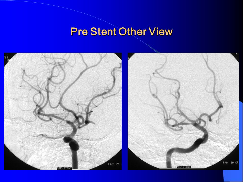 Pre Stent Other View