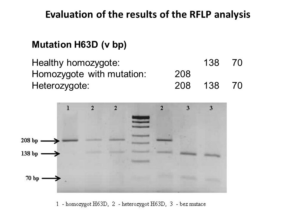 Mutation H63D (v bp) Healthy homozygote:13870 Homozygote with mutation:208 Heterozygote:20813870 Evaluation of the results of the RFLP analysis