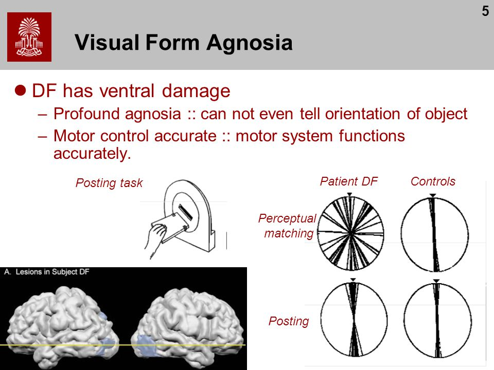 5 Visual Form Agnosia DF has ventral damage –Profound agnosia :: can not even tell orientation of object –Motor control accurate :: motor system functions accurately.