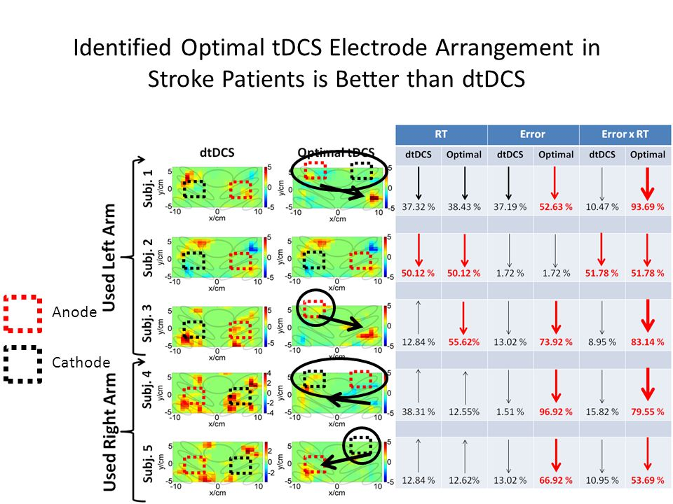 Identified Optimal tDCS Electrode Arrangement in Stroke Patients is Better than dtDCS Anode Cathode
