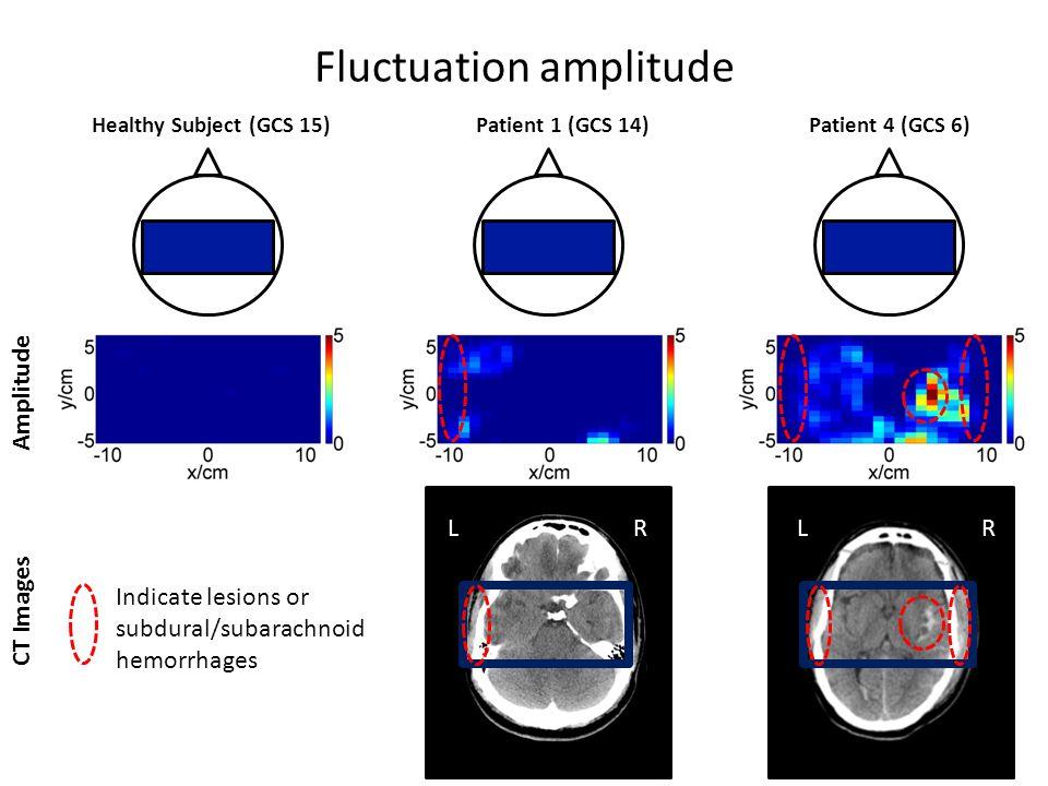 Fluctuation amplitude Patient 1 (GCS 14) Patient 4 (GCS 6) Healthy Subject (GCS 15) Amplitude CT Images RLRL Indicate lesions or subdural/subarachnoid