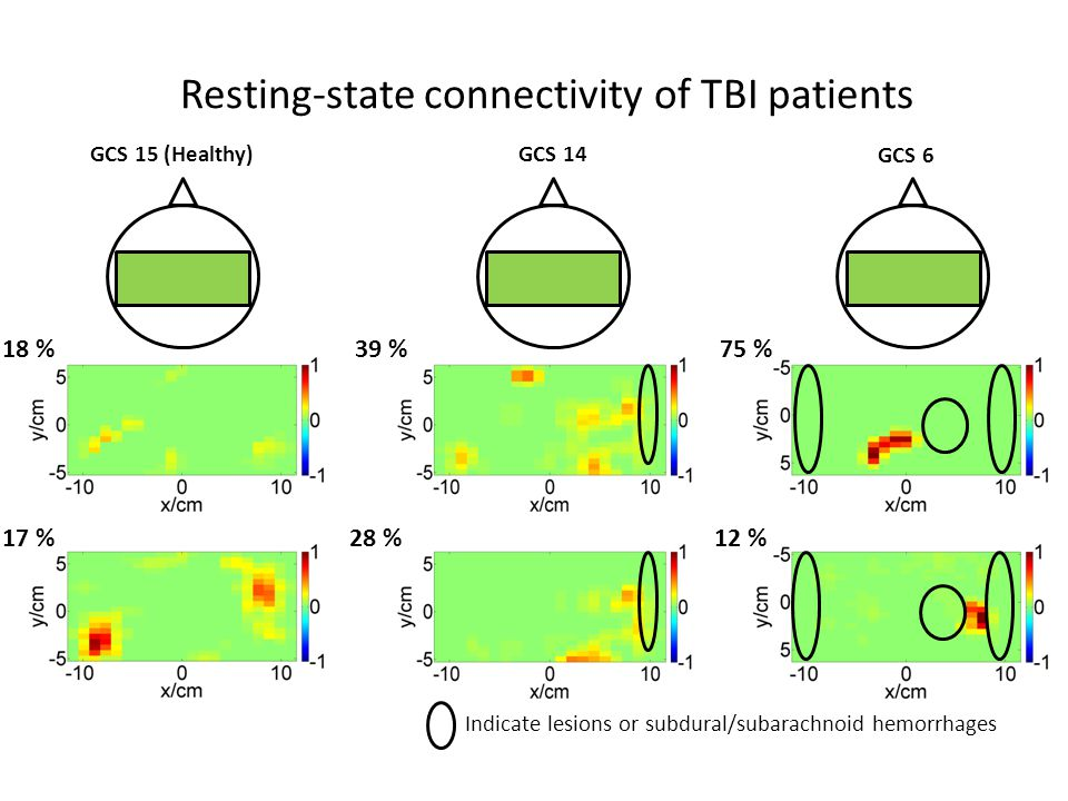 Resting-state connectivity of TBI patients GCS 15 (Healthy) GCS 6 17 % 18 % 28 % 39 % 12 % 75 % GCS 14 Indicate lesions or subdural/subarachnoid hemorrhages