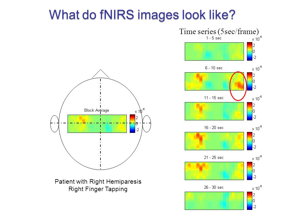 Patient with Right Hemiparesis Right Finger Tapping Time series (5sec/frame) Block average (30 sec) What do fNIRS images look like