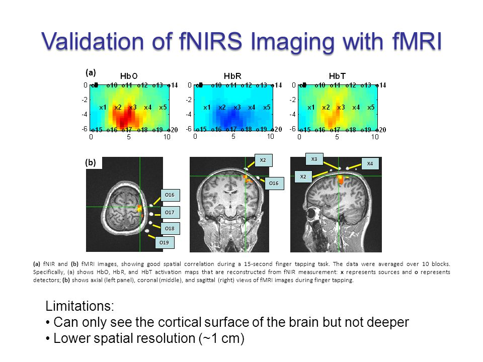 In what clinical applications could using fNIRS have an advantage over fMRI.