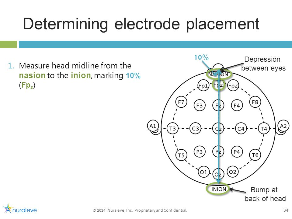 1.Measure head midline from the nasion to the inion, marking 10% ( Fp z ) Determining electrode placement 34 © 2014 Nuraleve, Inc.