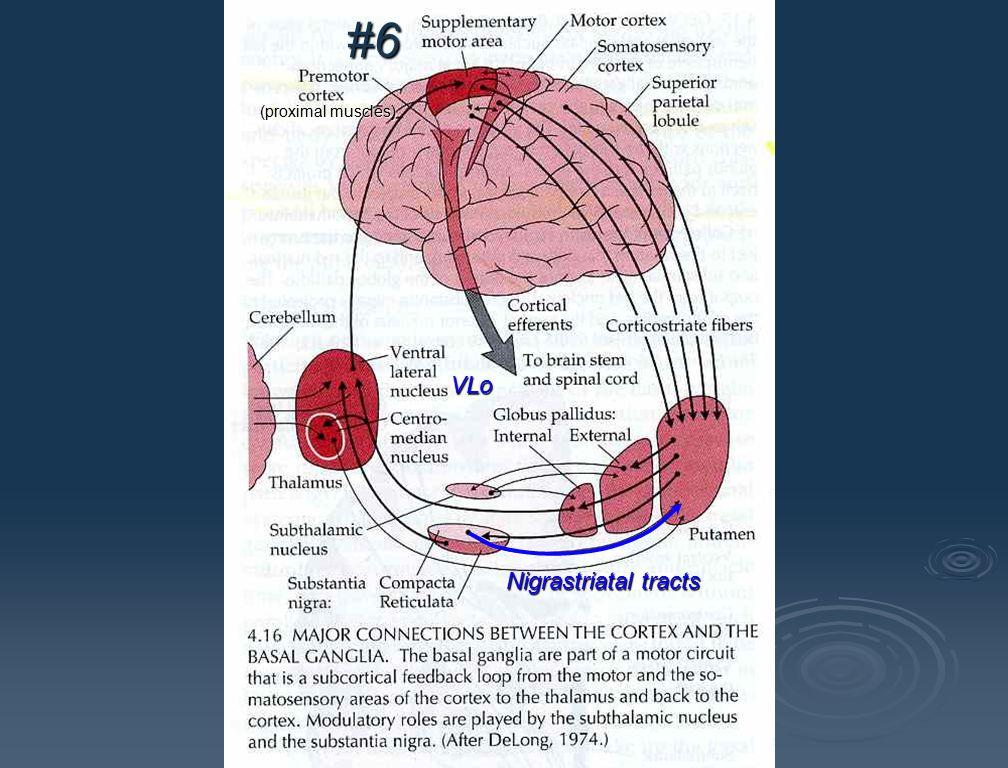 Striatum(putamen) external internal #6