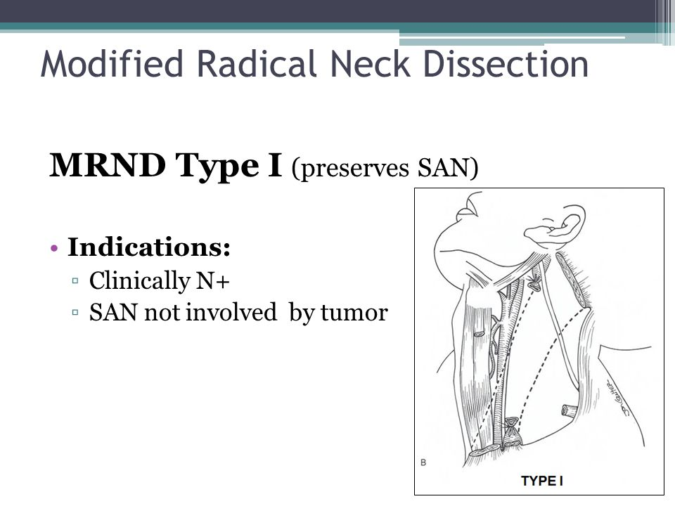 MRND Type I (preserves SAN) Indications: ▫Clinically N+ ▫SAN not involved by tumor