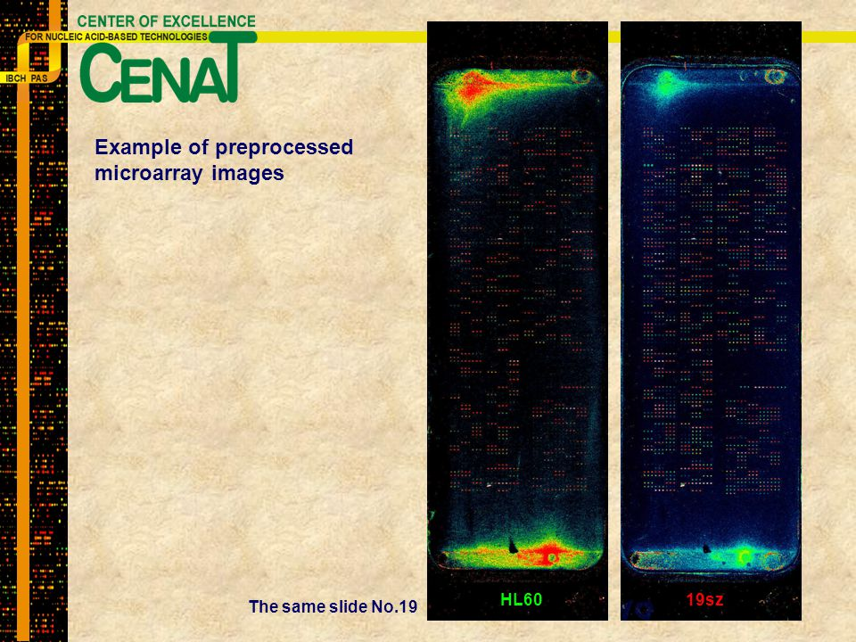 Example of preprocessed microarray images The same slide No.19 HL6019sz