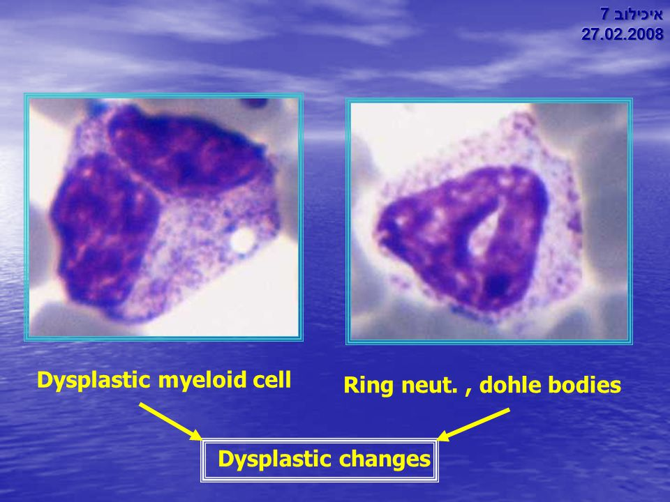 Ring neut., dohle bodies Dysplastic myeloid cell Dysplastic changes