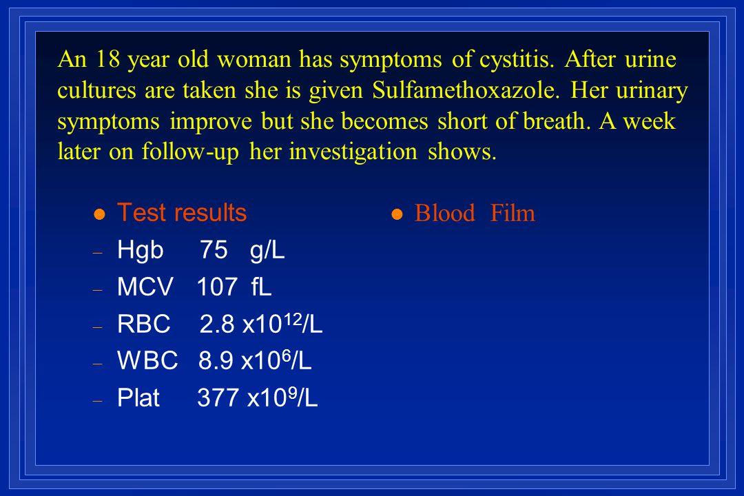 l Test results  Hgb 75 g/L  MCV 107  fL  RBC 2.8 x10 12 /L  WBC 8.9 x10 6 /L  Plat 377 x10 9 /L Blood Film An 18 year old woman has symptoms of