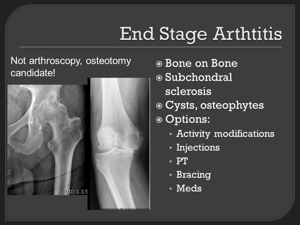  Bone on Bone  Subchondral sclerosis  Cysts, osteophytes  Options: Activity modifications Injections PT Bracing Meds Not arthroscopy, osteotomy candidate!